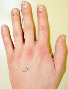 Diagnosen Handdiagnostik- Physiognomie