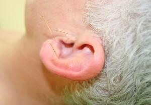 Therapien - Ohrakupunktur interaktive medizin stuttgart