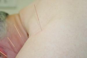 Therapien - TCM Akupunktur stuttgart